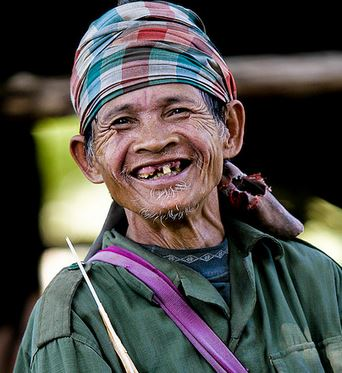pictures of people without teeth